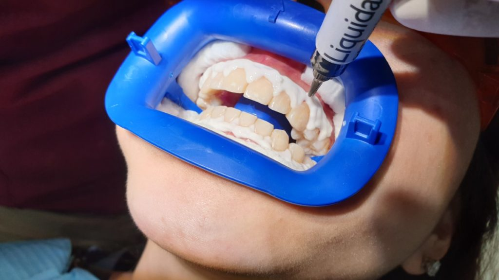 The Liquidam resin is applied onto the patient's gums to protect them during the Zoom teeth whitening procedure
