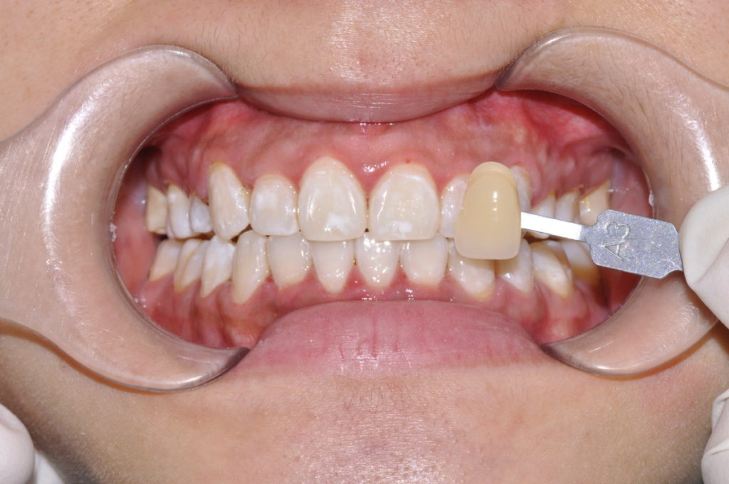 After the Zoom teeth whitening treatment. The shade guide is shown to display the improvement from the patient's original shade in her teeth.